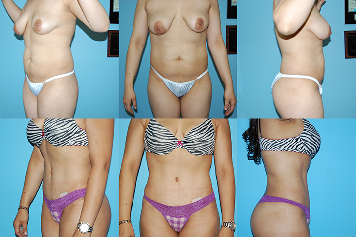 new york cosmetic surgery