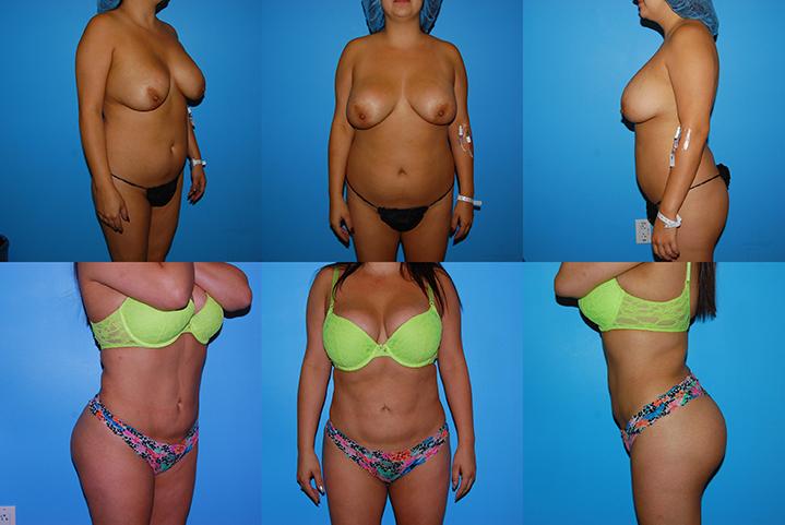 westchester plastic surgery