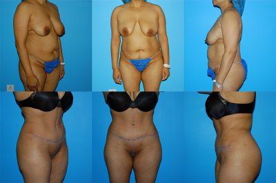 manhattan liposuction