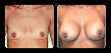 new york breast implant