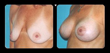 westchester breast augmentation