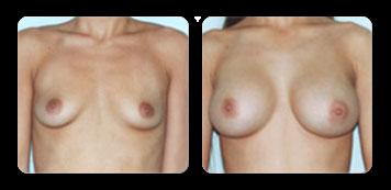 manhattan breast implants