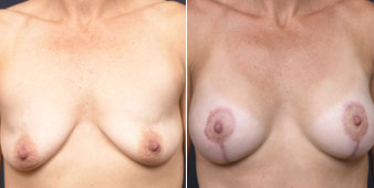 new york breast augmentation