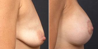manhattan breast augmentation