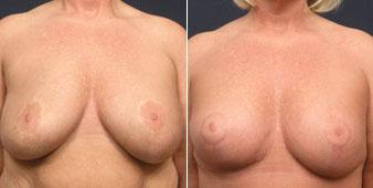 breast augmentation westchester