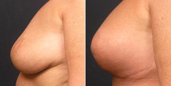 breast augmentation manhattan