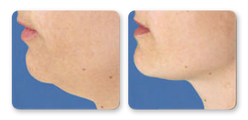 facial rejuvenation manhattan