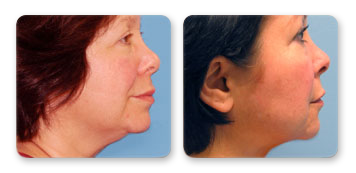 guzman skin care cosmetic surgery