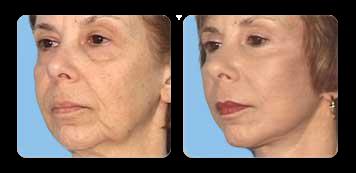 new york facial rejuvenation