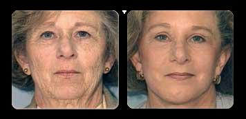 facial contouring westchester