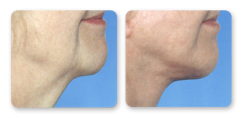 manhattan cosmetic surgery