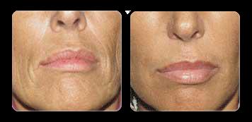new york skin cosmetic surgery