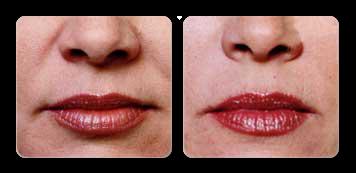 new york facial contouring