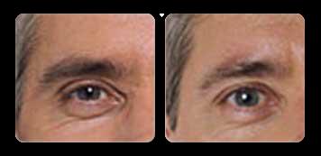 manhattan facial contouring