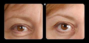 westchester facial contouring